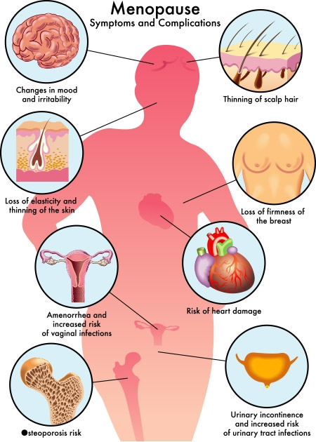 Symptons and Complications of Menopause
